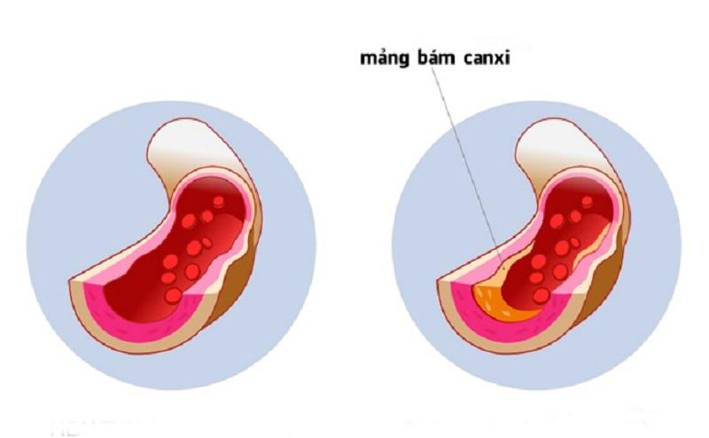 Vitamin K2-MK7 kích hoạt Matrix GLA Protein (MGP), ngăn canxi đóng cặn, tạo thành các mảng bám trên thành mạch, ngừa vôi hóa mạch máu